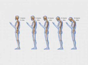 The development of text neck