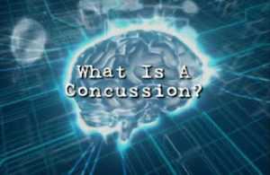Concussion is a hot topic