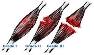 grades of muscle strain in the groin.
