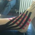 kinesiology tape ankle