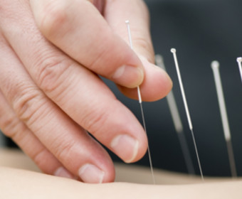 Dry Needle Therapy