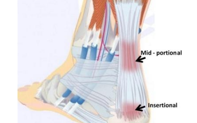 Achilles Heel Injury Treatments
