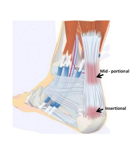 Achilles Heel Injury Treatments